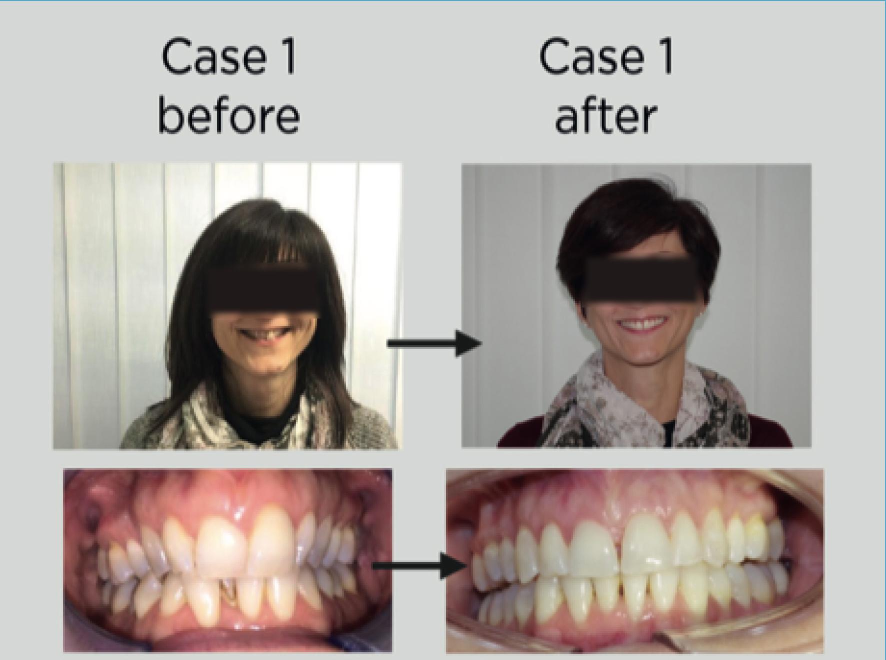 prima e dopo la terapia con gli Equilibratori Eptamed